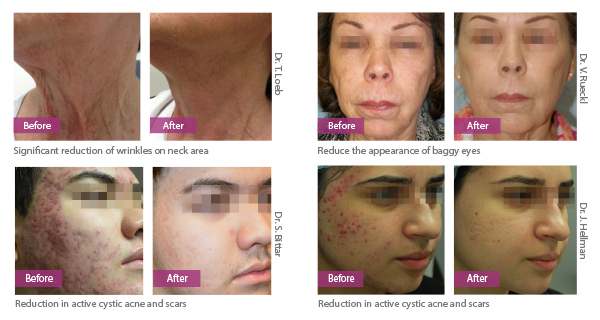 Before and Afters v2 2